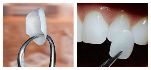 протезирование зубов как выбрать