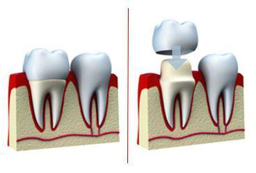 протезирование зубов при отсутствии большого количества зубов отзывы