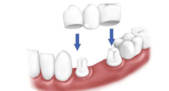 протезирование зубов при отсутствии большого количества зубов
