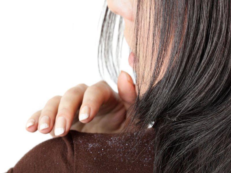 Сухие дрожжи для маски для волос: как отмерить? Рецепты приготовления масок. Чем полезны дрожжи для волос?