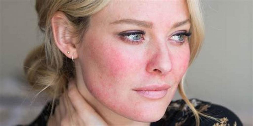Обветренное лицо: что делать, как восстановить кожу
