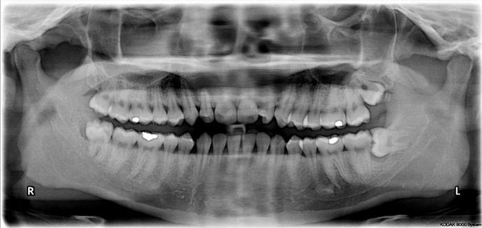 Зуб мудрости: удалять или нет