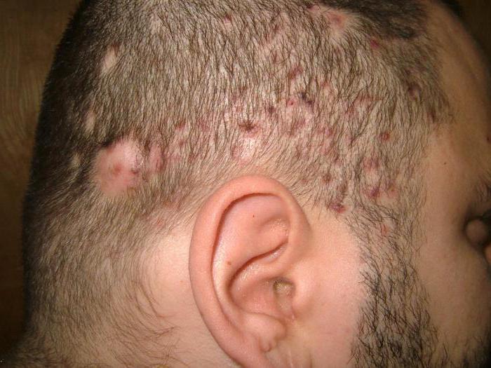 Фолликулит гофмана волосистой части головы 33