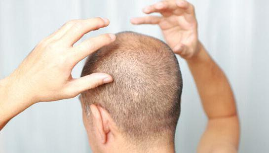 глубокий фолликулит волосистой части головы