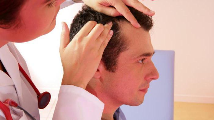 Фолликулит гофмана волосистой части головы 36