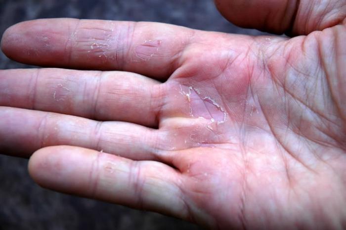 Удаление ногтя с грибком