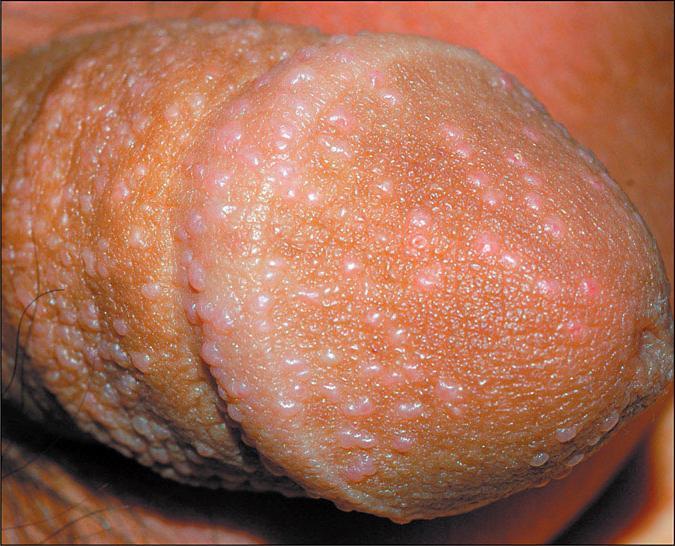 волдыри на члене при аллергии