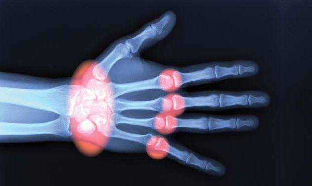 ревматоидный артрит у детей диагностика