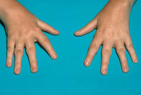 ревматоидный артрит у ребенка прогноз