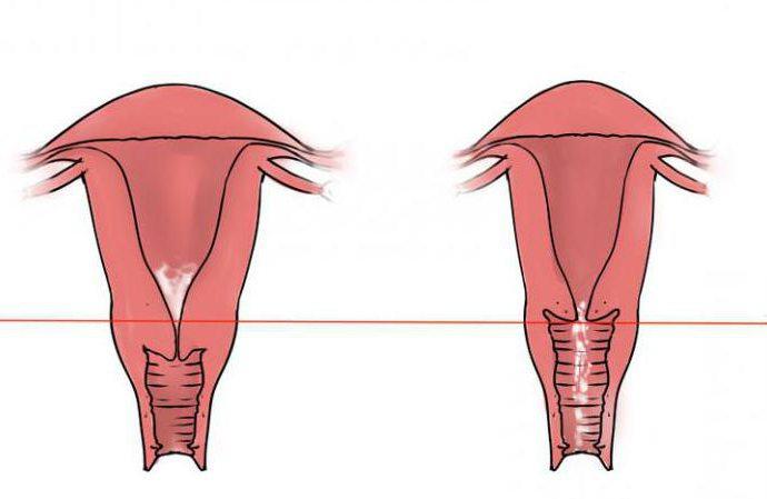 мышечная гипертрофия шейки матки