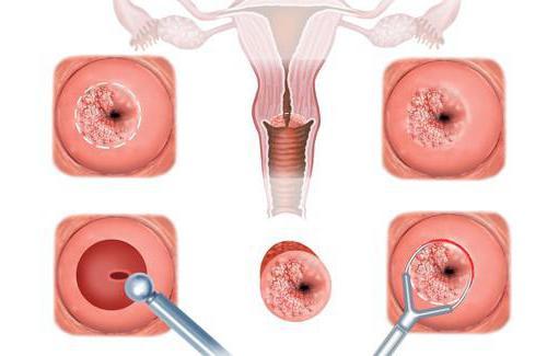 Цервикальная эктопия: причины, диагностика и лечение