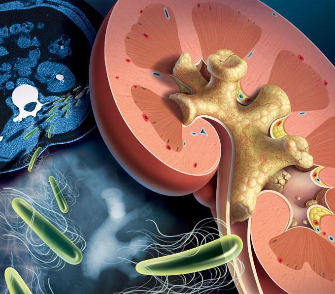 Камни в почке симптомы лечение без операции