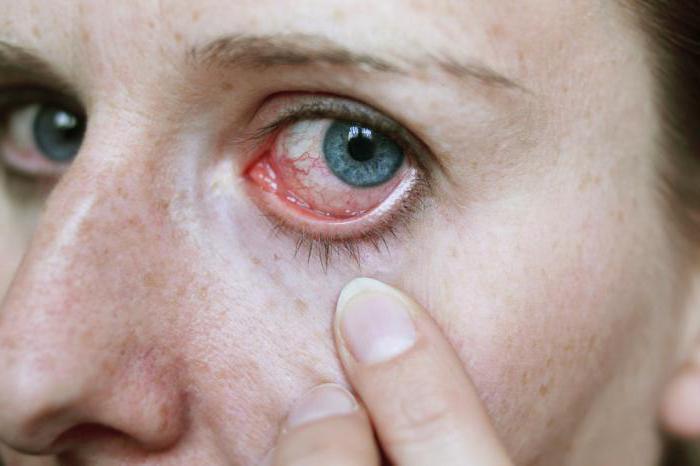 паразиты в глазах человека симптомы