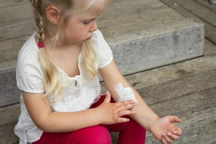 Нейродермит у ребенка: причины, симптомы и лечение