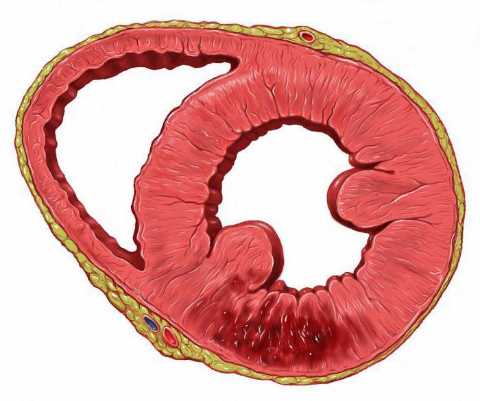 диагностика и лечение хронической ишемической болезни сердца