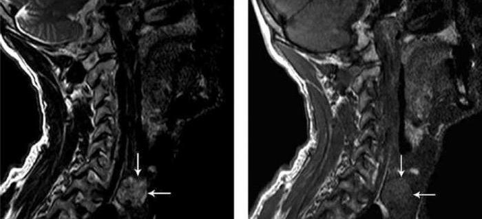 мрт щитовидной железы с контрастом