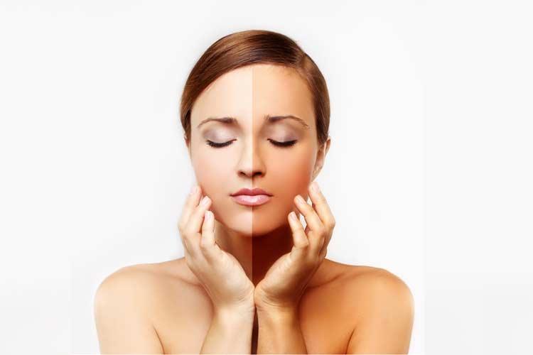 Как отбелить смуглую кожу от рождения