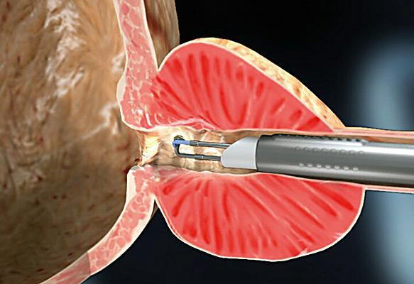 Железисто фиброзная гиперплазия предстательной железы