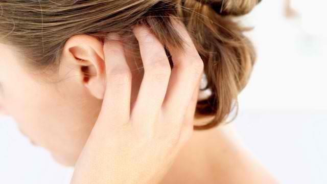 Причины, симптомы и лечение себорейного дерматита на голове