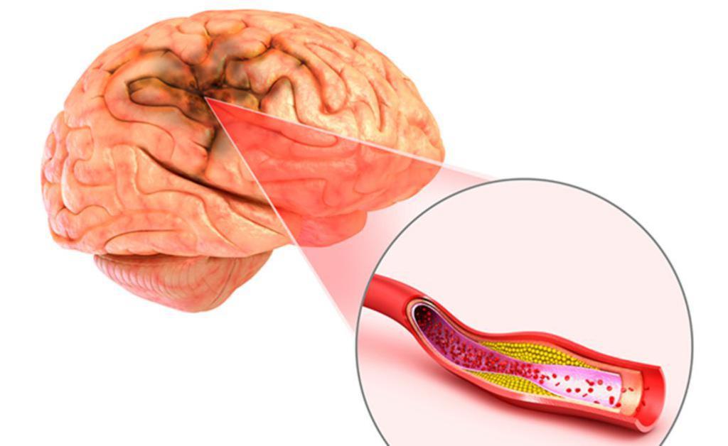 Причины ишемии головного мозга