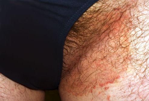 Грибок на коже ног как он проявляется