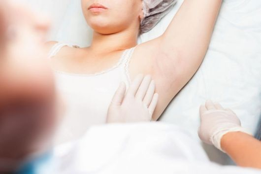 Воспаление потовых желез операция