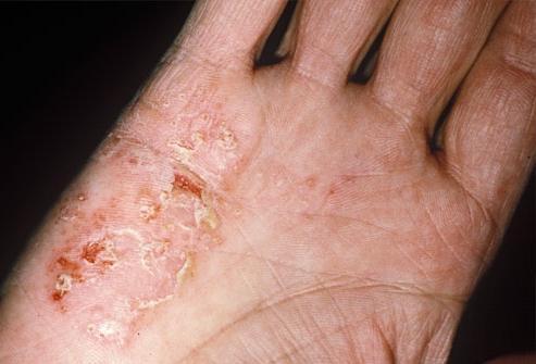 Грибок кожи лечить народными средствами