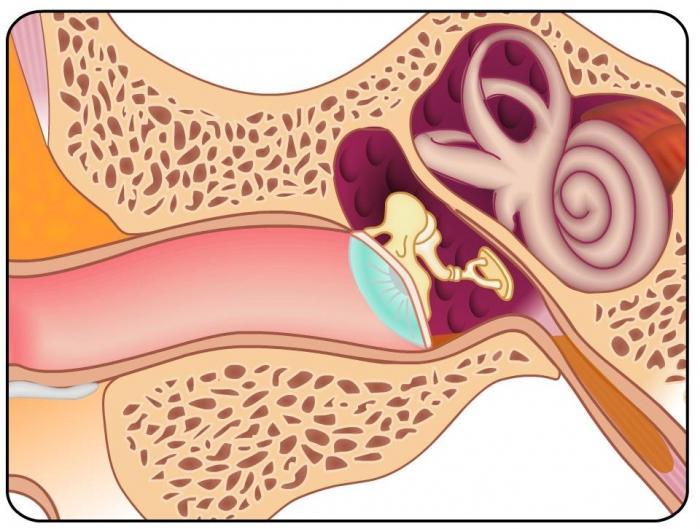 симптомы евстахиит Евстахиит – симптомы