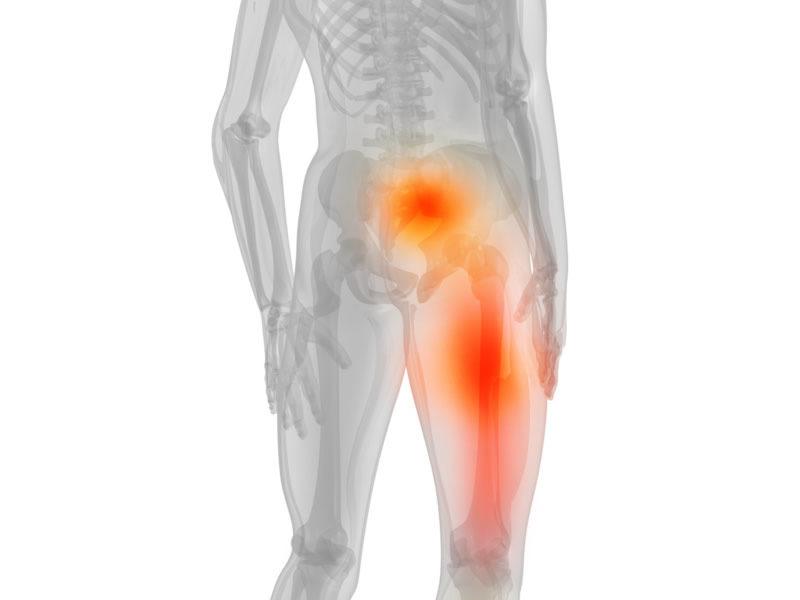 Абсолютный стеноз позвоночного канала: причины, симптомы, диагностика и методы лечения