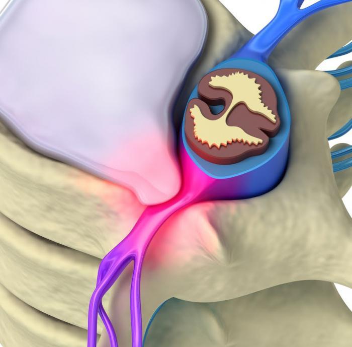 парацентральная экструзия диска