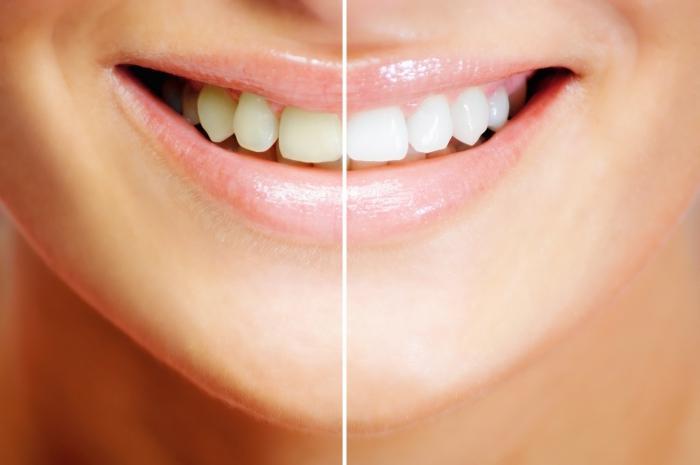 Готовим зубную пасту для отбеливания зубов