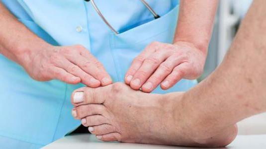 Боль в косточке на ноге у большего пальца - лечение причины
