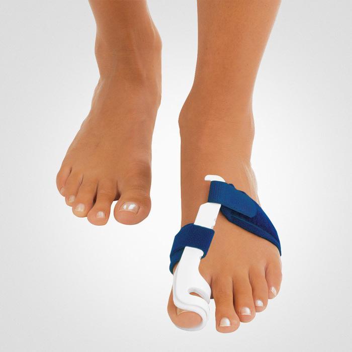 Вальгусная деформация большого пальца стопы - причины лечение