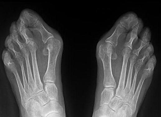 Лечение шишек на ногах у большого пальца без операции
