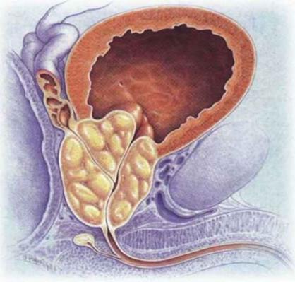 Фиброз правой доли предстательной железы
