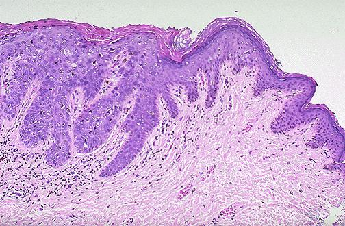 Диета при лейкоплакии шейки матки