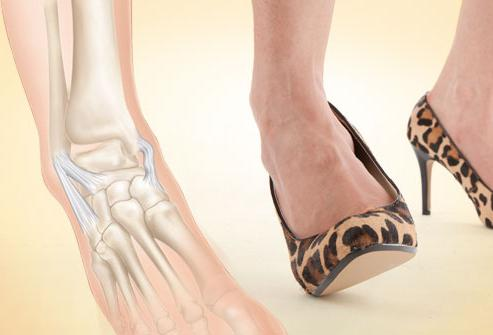 Связки на ноге