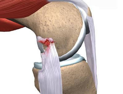 Порваны связки на ноге: симптомы и лечение
