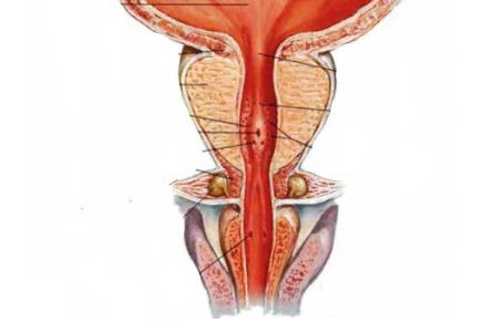 острая задержка мочи при аденоме предстательной железы