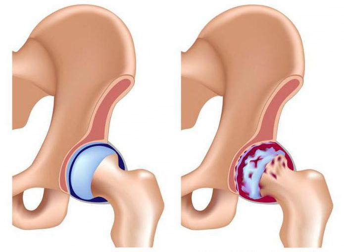 артроз 1 степени тазобедренного сустава лечение