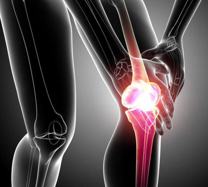 Лекарства для лечения артрита коленного сустава список лучших