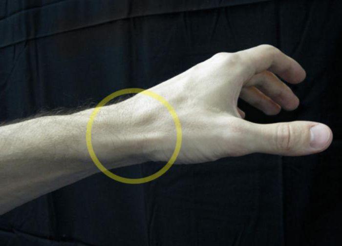 Стиль. Это воспаление сухожилия кисти руки лечение чудо!!!!!!!!!!!!!!!!!!!!