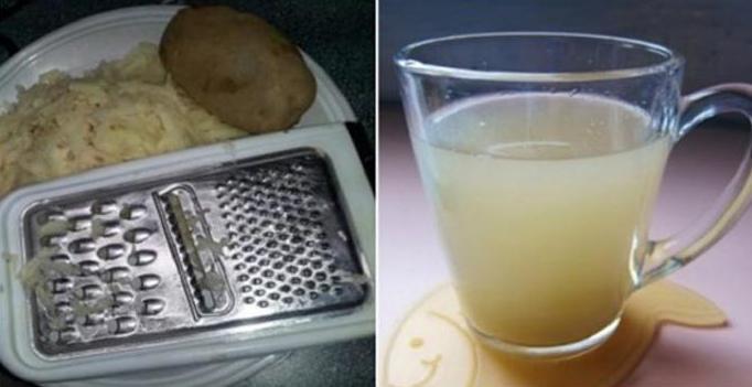 картофельный сок при панкреатите и холецистите в домашних условиях