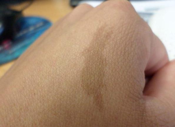 Чем обрабатывать раны после удаления бородавок лазером