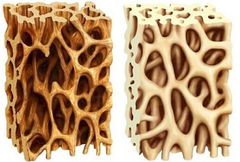 тазобедренный сустав кости