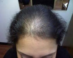 Для волос генеролон отзывы