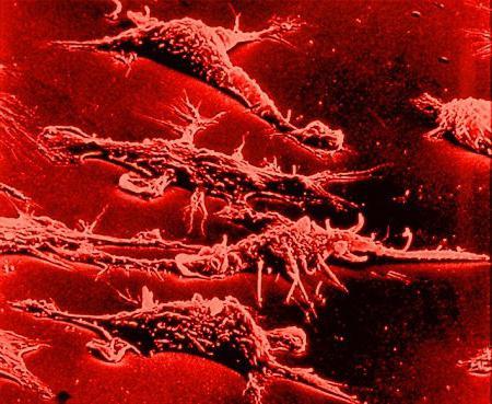 Как лечить ureaplasma urealyticum parvum днк