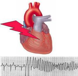 аритмия сердца причины лечение