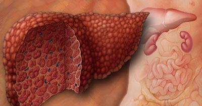 Заболевание печени: симптомы и лечение