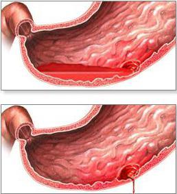 болезни желудка и двенадцатиперстной кишки